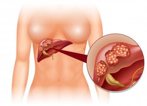 5 начина да помогнем на своя черен дроб