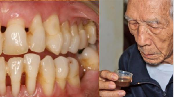 Пародонтоза – мъж споделя своята рецепта за лечение!