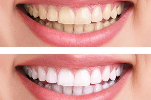 Естествено избелване на зъбите за 3 минути! Спести пари от зъболекари!
