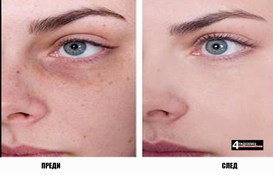 11 начина за премахване на черни точки и тъмни петна по лицето