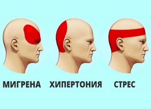 Как Да Се Отървем От Главоболието За 5 Минути Без Хапчета!