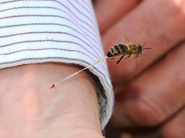 Какво да правите ако ви ужили стършел, пчела или оса – МНОГО ЦЕНЕН СЪВЕТ!